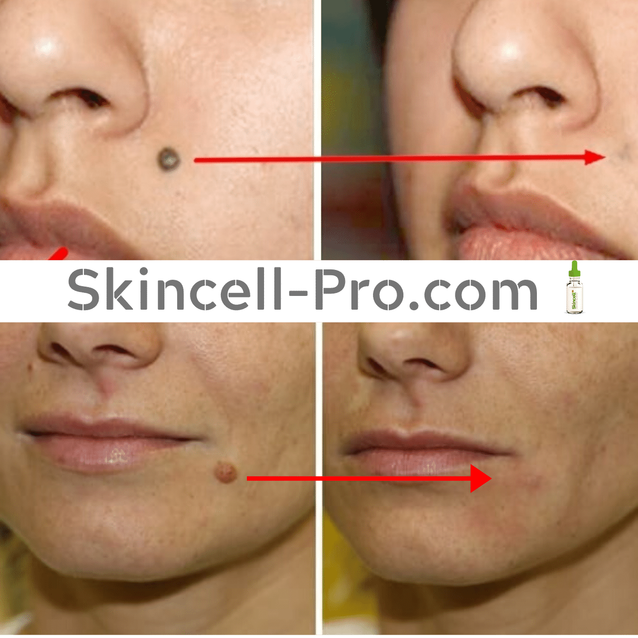 ️SkinCell Pro - ️ Mole and Skin Tag Corrector Serum